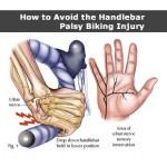 Handlebar Palsy – AKA Cyclist's Palsy