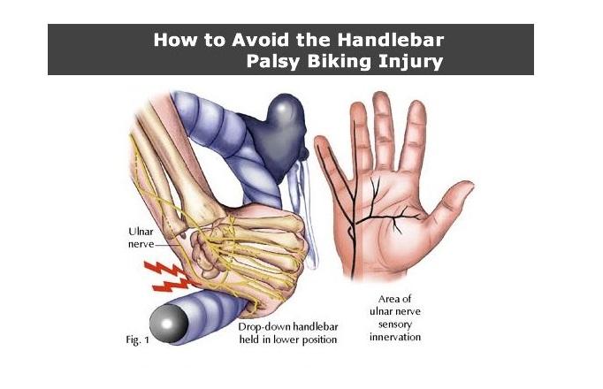 handlebar palsy4